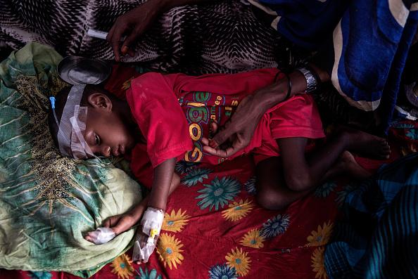 Un joven sufre desnutrición en la sala de un hospital en Garowe, Somalia. (Getty Images)
