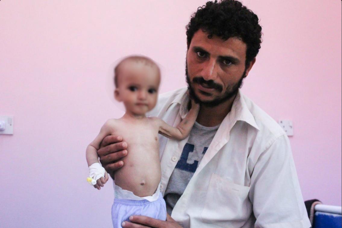 Menor de edad que padece desnutrición en Yemen; el país podría sufrir una crisis de hambruna (Twitter @pulitzercenter)