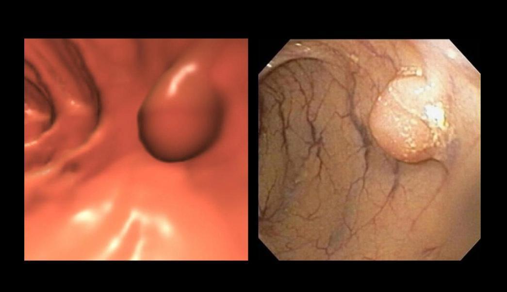 Imagen de pólipos en el colon (AP, archivo)