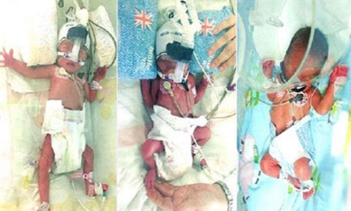 Una mujer embarazada de trillizos dejó a médicos en China desconcertados (Foto: vanguardngr.com)