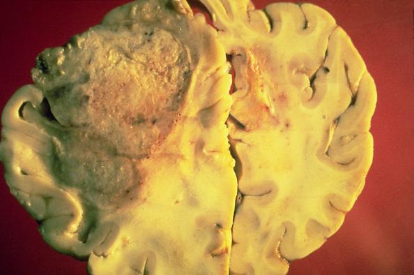 Cerebro invadido con cáncer; científicos descubren nuevas causas genéticas del cáncer cerebral (Getty Images, archivo)