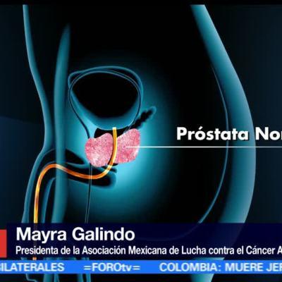 Cáncer de próstata en México