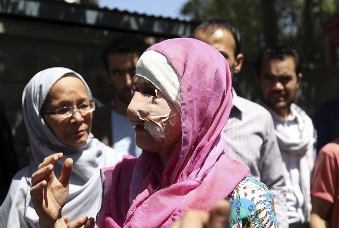 Una víctima tras la explosión masiva en Afganistán (AP)