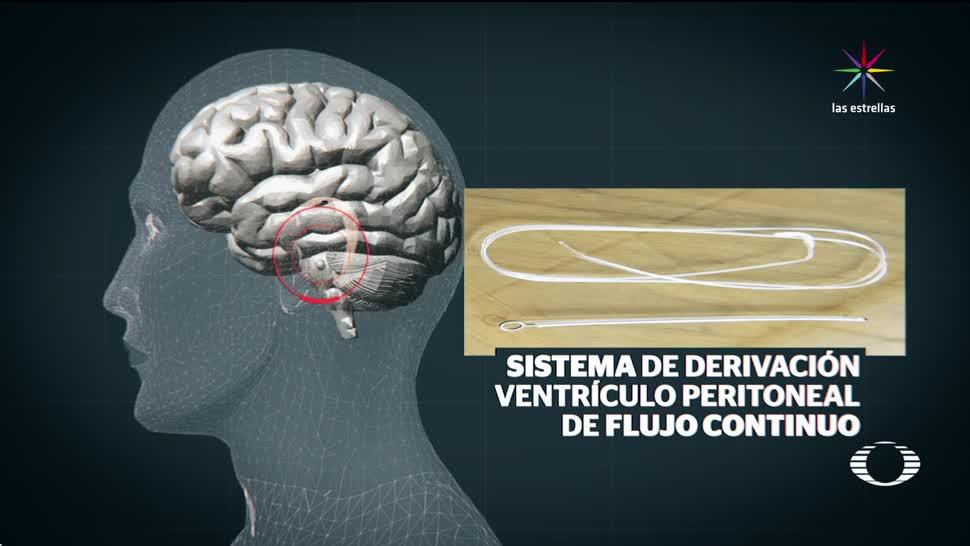 Negligencia, médica, Instituto, Nacional, Neurología, Hidrocefalia