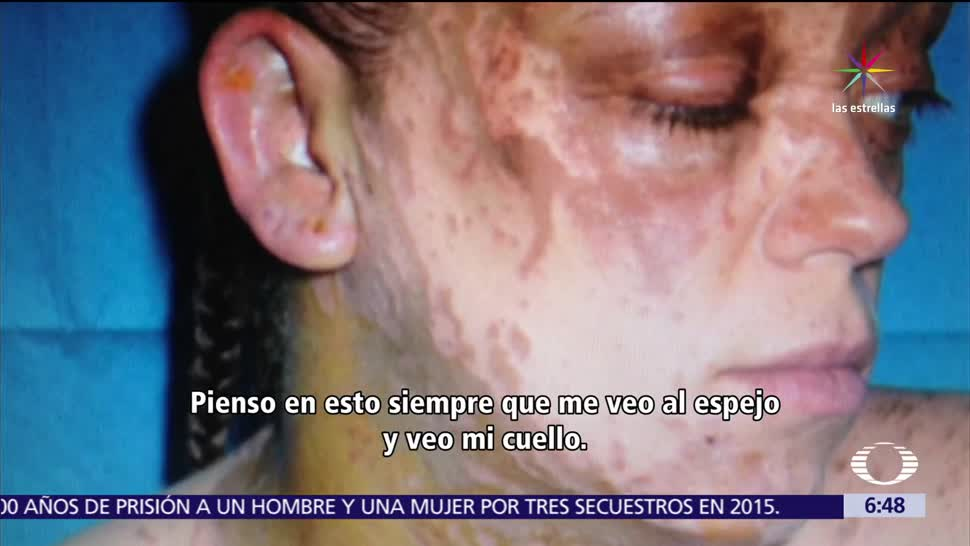 cifra de ataques, ataques con ácido, Londres, víctimas piden justicia