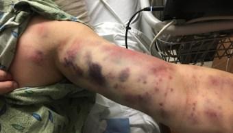 Extraña, mordedura, insecto, hospital, Thomas Jay, Arizona, Estados Unidos