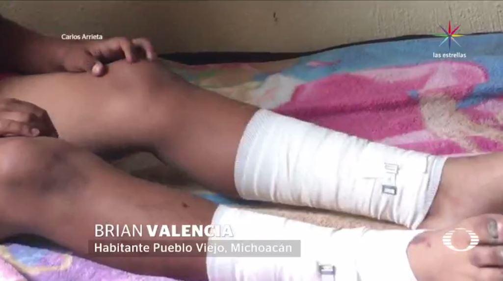 Campo de futbol, Michoacán, volcán, incendio subterráneo, volcán, UNAM, Brian, quemaduras