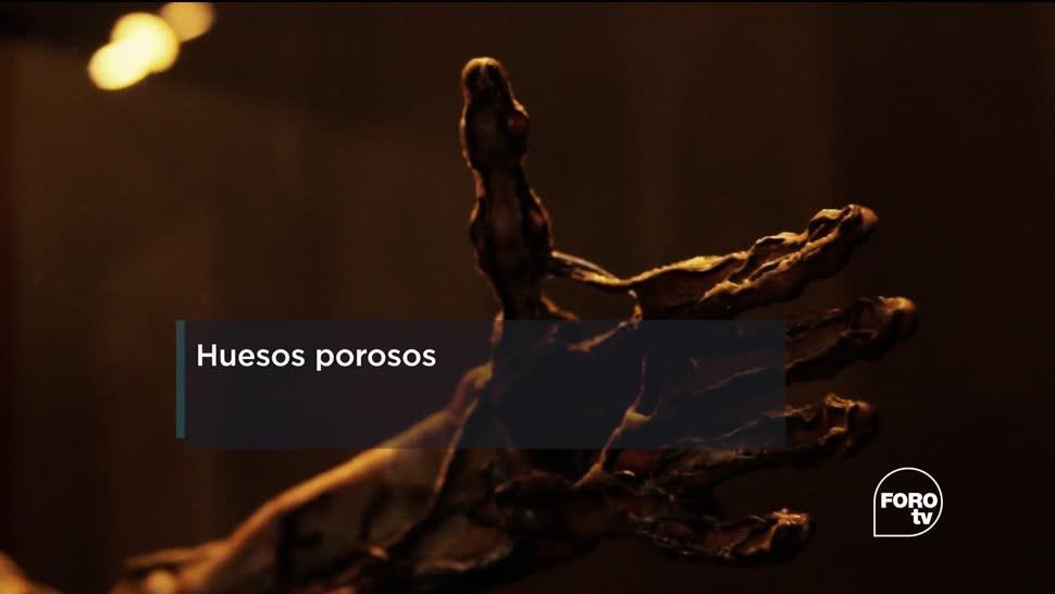 osteoporosis, Expertos, Facultad de Medicina, Universidad Nacional Autónoma de México (UNAM)