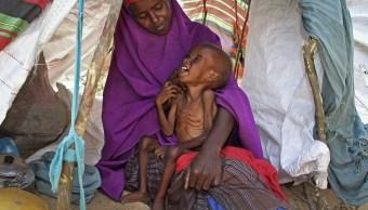 Una madre consuela a su niño desnutrido, Ibrahim Ali, de 7 años (AP)