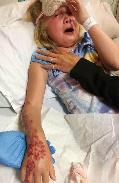 Tatuajes de Henna, Reacciones Alérgicas, Henna, Cicatrices, Ámpulas, PPD