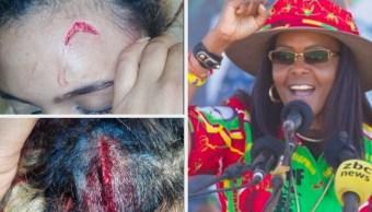 Acusan a primera dama de Zimbabue de atacar a modelo