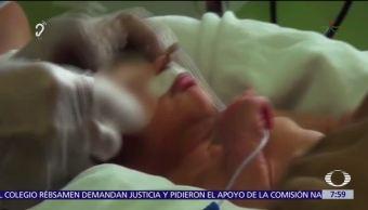 Suministro excesivo e inadecuado de oxígeno en bebés prematuros causa retinopatía