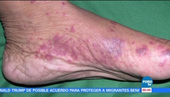 Gangrena Carnívora, la infección que consume los tejidos
