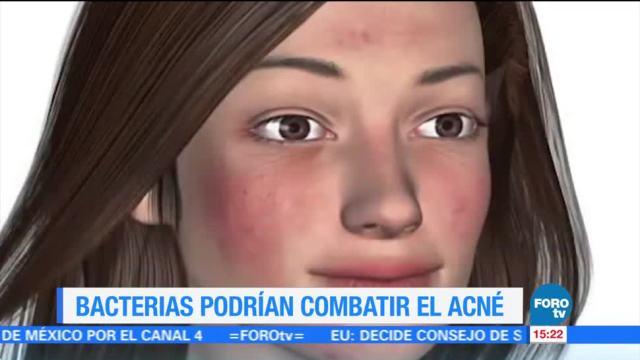 Bacterias podrían combatir el acné y el eczema