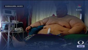 Operan al hombre más gordo del mundo