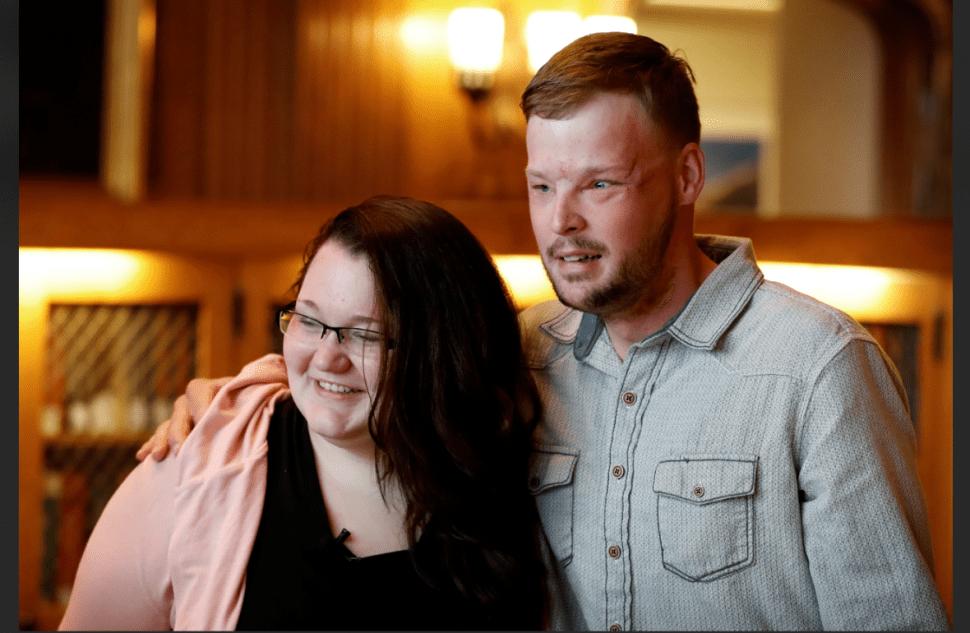 Lilly y Andy se conocieron 16 meses después del trasplante de rostro al que fue sometido él