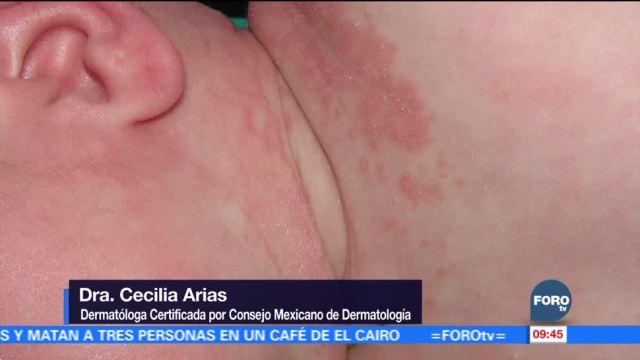 Casos de dermatitis atópica en temporada invernal