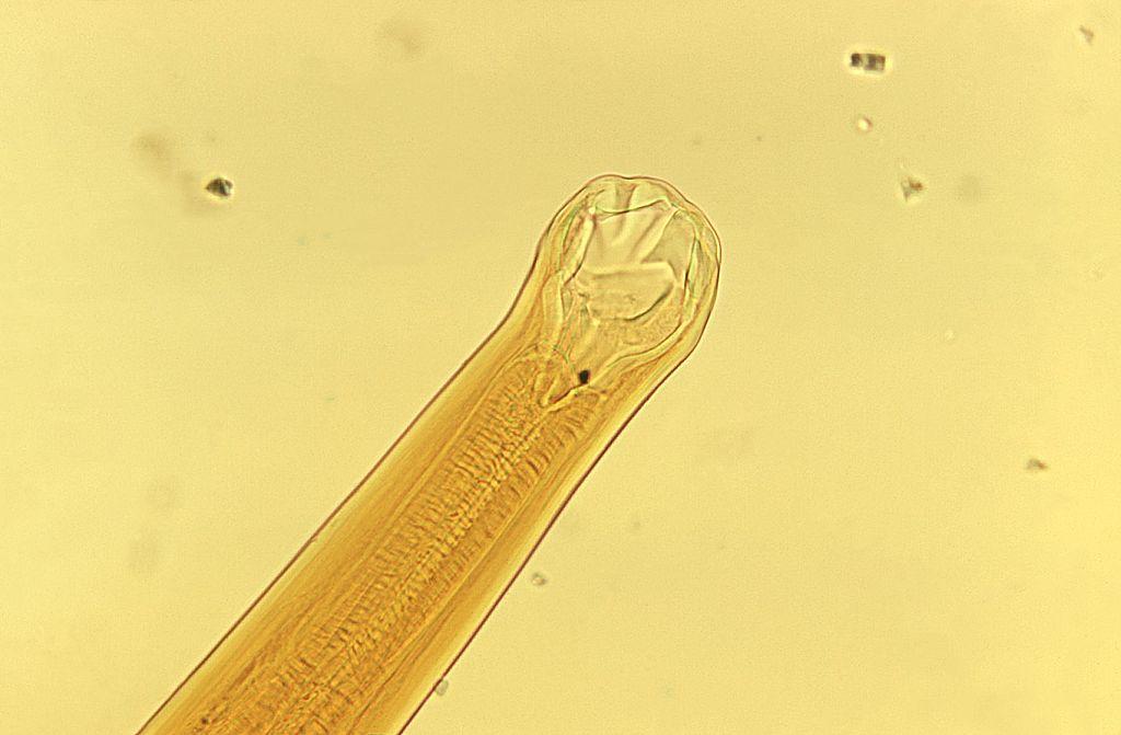 larva-migrans-cutánea