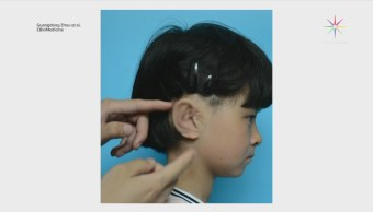 Científicos crean implantes de oreja en 3D
