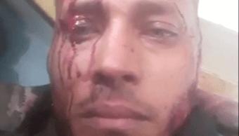 El policía rebelde venezolano Óscar Pérez resultó herido durante operativo