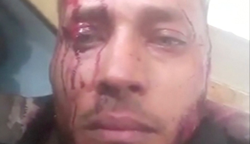 Exagente venezolano Óscar Pérez murió por bala en la cabeza, según ONG