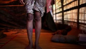 Pobreza influye en actitud violenta de hombres hacia mujeres
