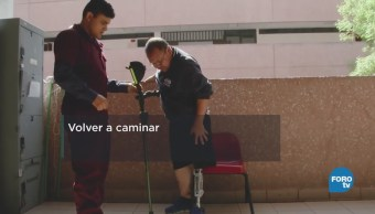 Prótesis pacientes diabetes Expertos Instituto Politécnico Nacional