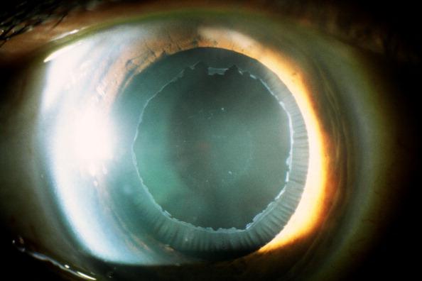 aconsejan revision anual para prevenir glaucoma