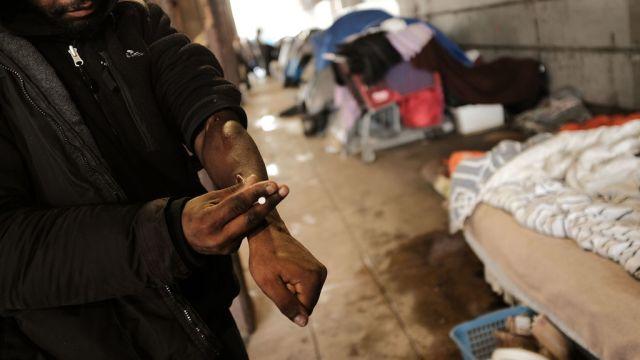 Sobredosis opioides suben 30 ciento Estados Unidos