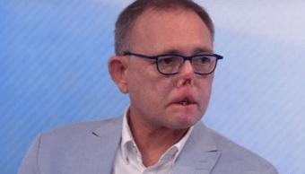 Jaco Nel Hombre pierde dedos piernas perro