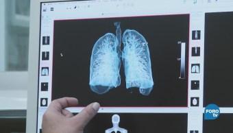 ¿Cómo se obtiene una tomografía?