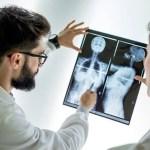 Descubren inmunoterapia que elimina cáncer de mama avanzado