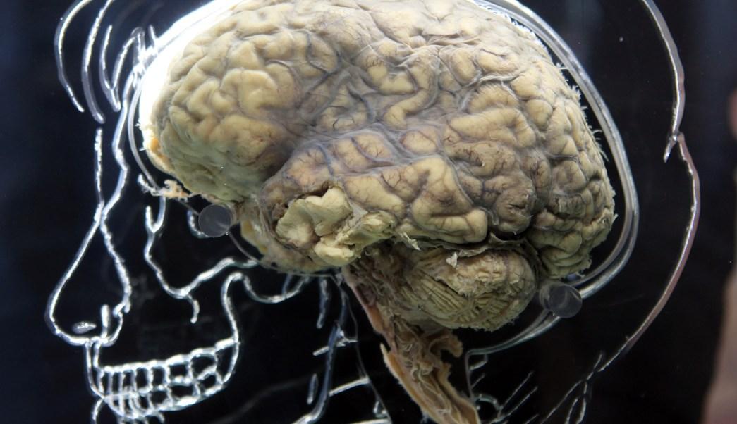 Sin Diferencias Cerebro Hombres Y Mujeres, Cerebro Masculino, Cerebro Femenino, Cerebro Humano, Inteligencia Humana, Neurociencia