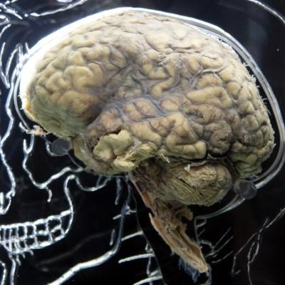 Estos factores envejecen el cerebro y reducen su tamaño