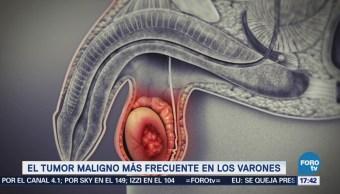 Cáncer Testicular Tumor Más Frecuente Varones