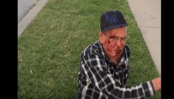 Golpean Anciano Mexicano Migrante Estados Unidos, Ataque Racista Estados Unidos, Los Ángeles, Rodolfo Rodriguez, California, Migrantes