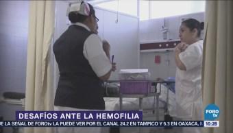 La hemofilia puede ser tratada con efectividad