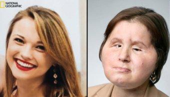 Fotografías del trasplante de cara de Katie Stubblefield