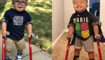 Niño dos años espina bífida logra caminar inspira mundo