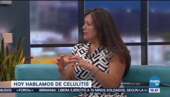 Recomendaciones Para Eliminar Celulitis