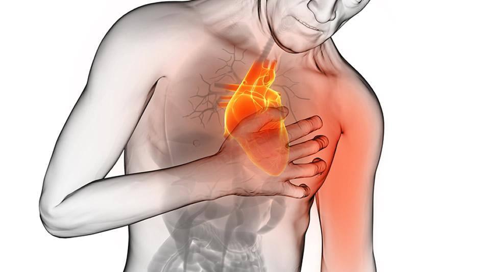 signos de paro cardiaco en mujeres