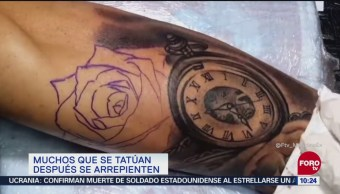 Personas que se tatúan, después se arrepienten