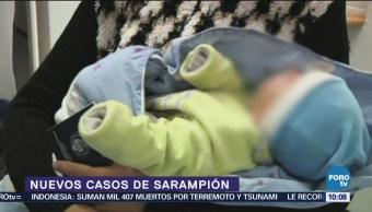 Registran nuevos casos de sarampión