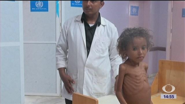Miles de niños mueren de hambre en Yemen