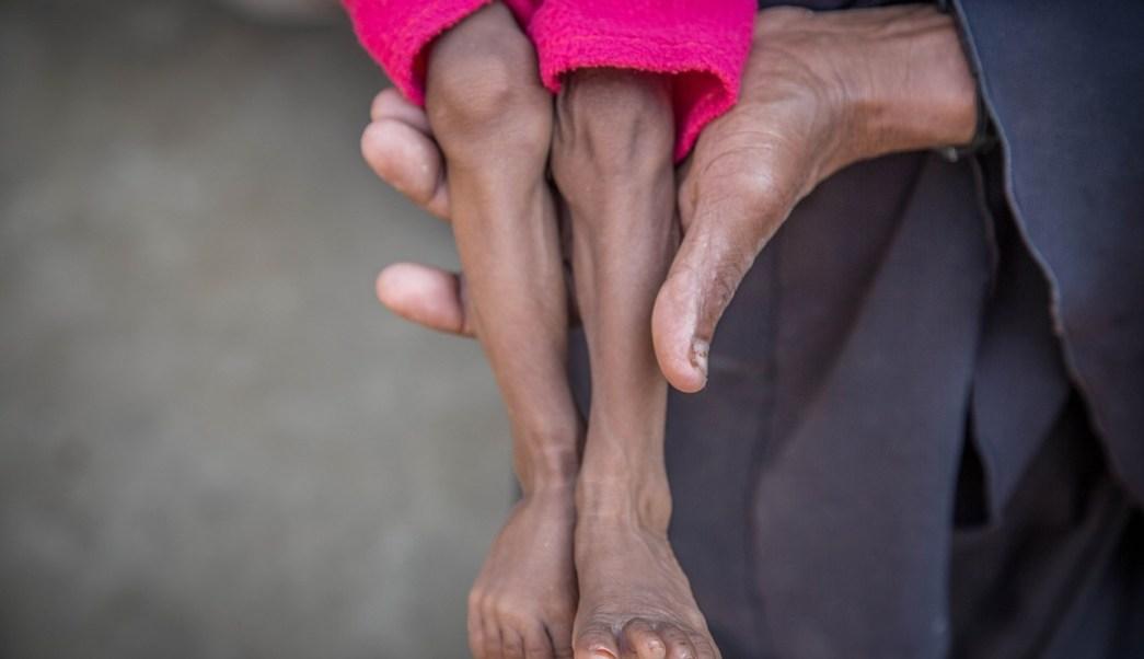 Yemen: Unos 85 mil niños han muerto de hambre en los últimos cuatro años