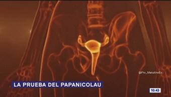 ¿Qué es la prueba del Papanicolaou?