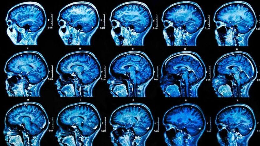 Los momentos de estrés pueden aumentar la presencia del virus del herpes en el cerebro y causar una acumulación de daños (BBC)