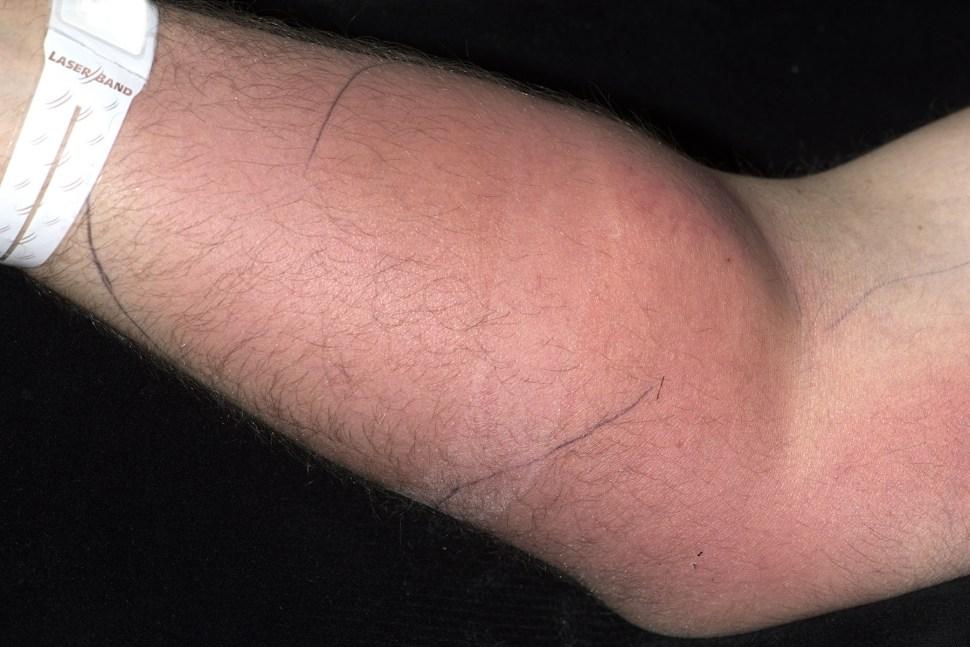 El hombre tenía un área enrojecida en su brazo derecho, la cual contenía semen endurecido en los músculos, lo que causaba severa inflamación (Irish Medical Journal)
