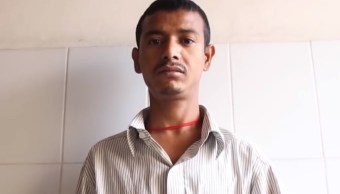 El 'Hombre árbol' de Bangladesh recae y necesita nuevas cirugías