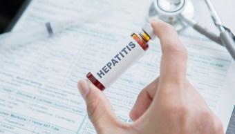 Foto: Confirman casos de hepatitis en Sinaloa, 28 de febrero 2019. Getty Images